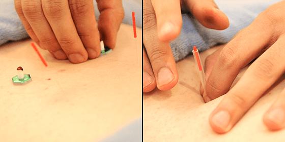 鍼灸治療スライダーイメージ4